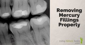 Removing Mercury Fillings Properly