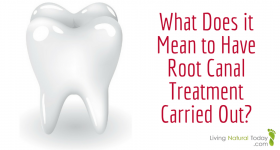 What Does it Mean to Have Root Canal Treatment Carried Out?