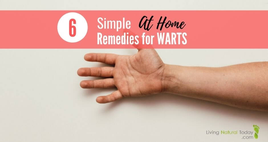 at home remedies for warts