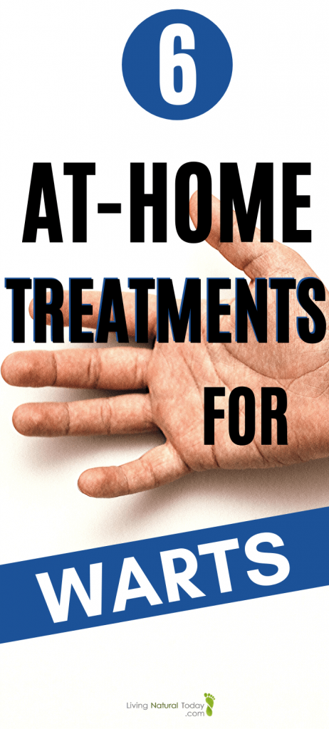 at home treatment for warts