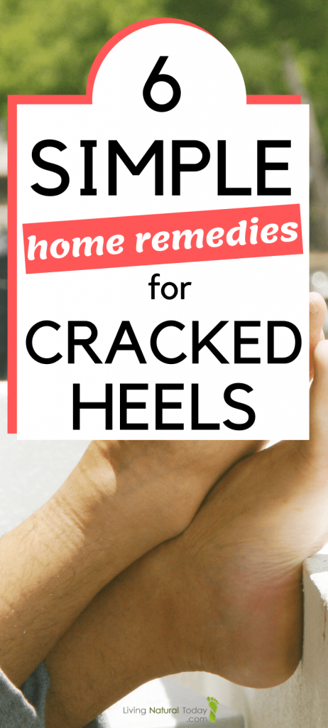 how to get rid of cracked heels